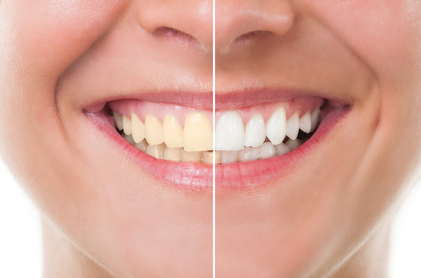 Before and after photo of teeth whitening treatment from Hickerson & Associates, DDS. PC. in Houston, TX